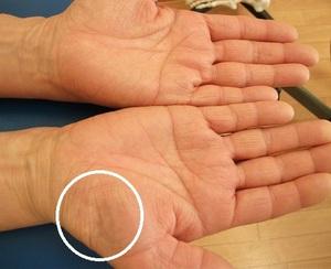 手 根 管 症候群
