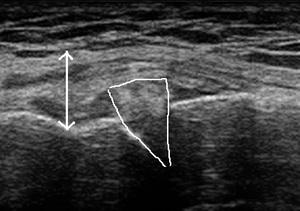右膝内側痛20171030121204_1218540.jpg