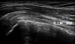 上腕二頭筋長頭腱炎 douga tk1.jpg