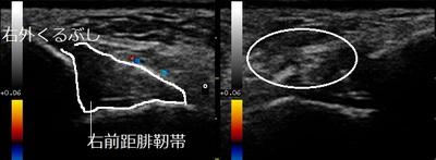 足首捻挫 前距腓靭帯損傷20180503003028_0032440.jpg
