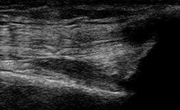 右膝蓋上嚢(正常)エコー画像