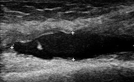 左膝蓋上嚢に関節液貯留(患部)エコー画像