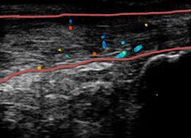 右アキレス腱炎のエコー画像