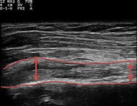 左上腕二頭筋長頭腱炎のエコー画像