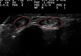 左手関節捻挫エコー短軸画像