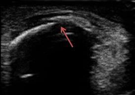 左膝蓋骨骨折のエコー短軸画像