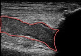 左膝上部の血腫エコー長軸画像