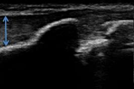 右膝下エコー画像(正常側)