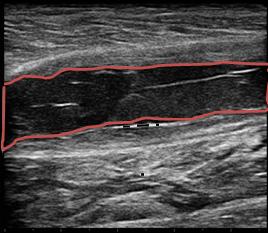 右ふくらはぎ(腓腹筋内側頭)断裂のエコー画像