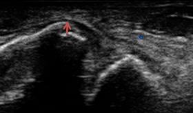 左足関節外果(外くるぶし)骨折のエコー画像